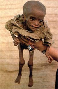 Vergüenza de la humanidad